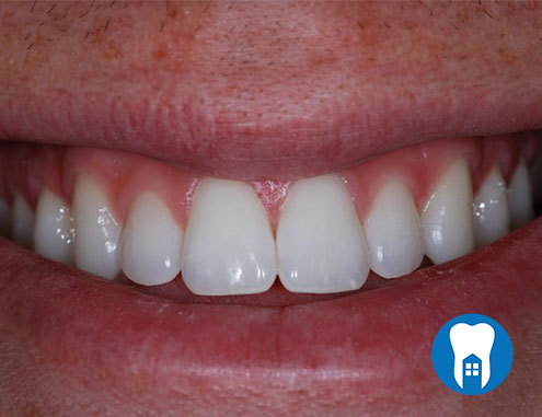 Combination whitening - after