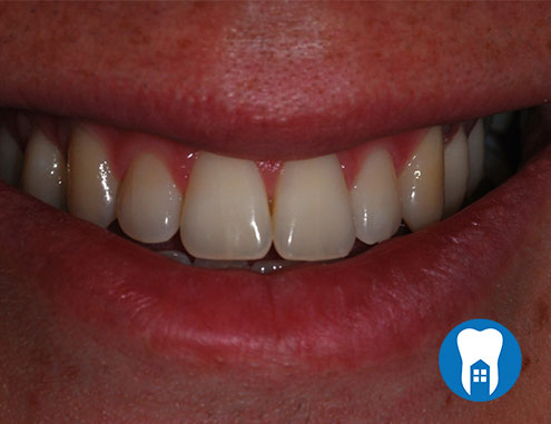 Combination whitening - before
