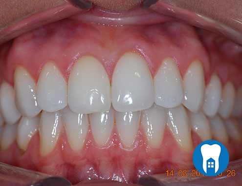Home teeth whitening - after - Case 1