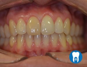Home teeth whitening - before - Case 1