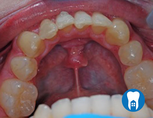 Inman Aligners - before - Case 1