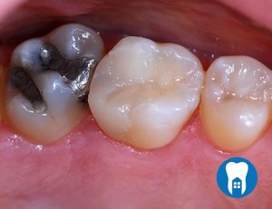 Replacing decayed amalgam filling with composite - After