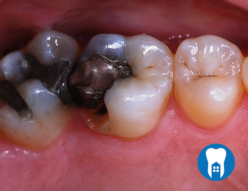 Replacing decayed amalgam filling - Before