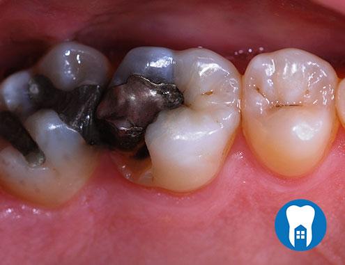 Replacing decayed amalgam filling - Before