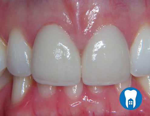 Veneers - after - Case 2