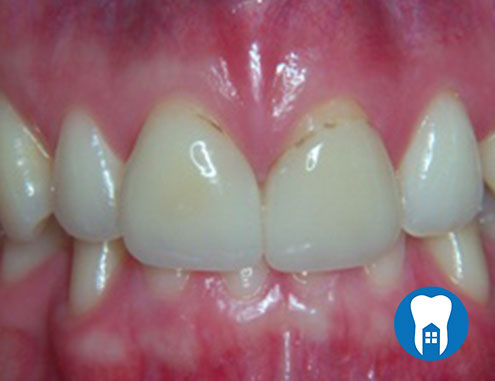 Veneers - before - Case 2