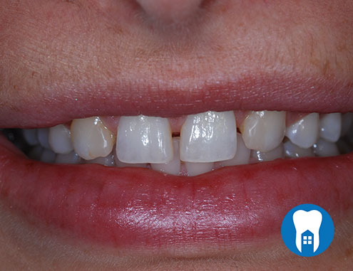 Composite Bonding - before - Case 4