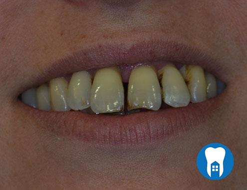 Dentures before - Case 1