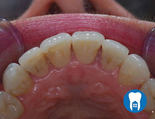 Inman Aligners - after - Case 3