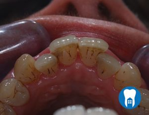 Inman Aligners - before - Case 3