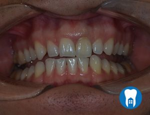Internal whitening - after