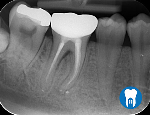 root canal 1 after