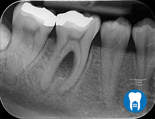 root canal 1 before