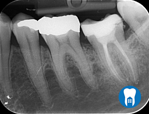 root canal 3 after