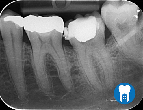 root canal 3 before