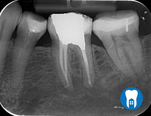 root canal 4 after