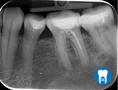 root canal 4 before