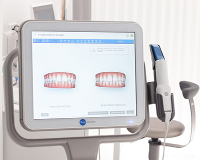 dental digital scanner